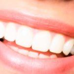 Tout savoir sur l'implant dentaire ?